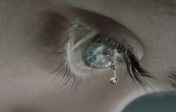 слезной мешок глаза