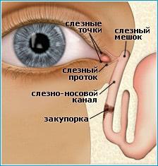 воспаление слезного мешка глаза