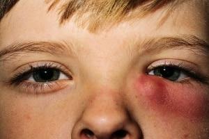 воспалительный слезной мешок глаза