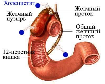 заболивание холецистит