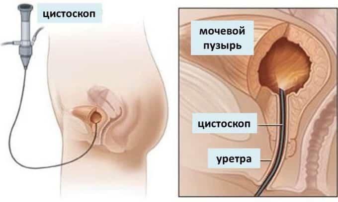 Симптомы цистита женщины