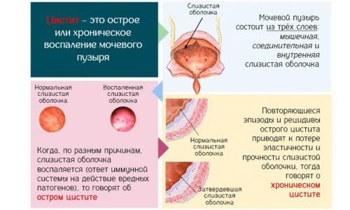 При цистите мучает резь, боль внизу живота и частые позывы к мочеиспусканию. Больной не может полноценно работать, отдыхать, вести активную половую жизнь