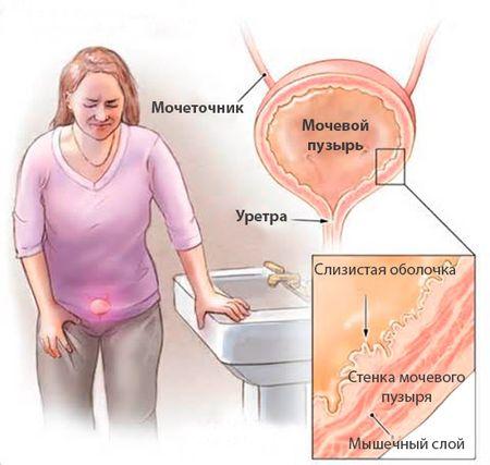 причины возникновения мочевой болезни