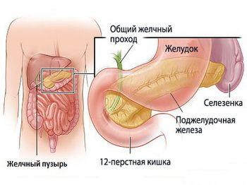 Диагностика холецистита