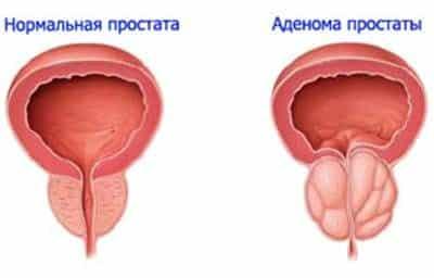 Біль в сечовому міхурі