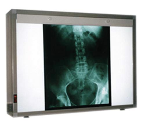 Негатоскопы: опыт применения в гинекологии