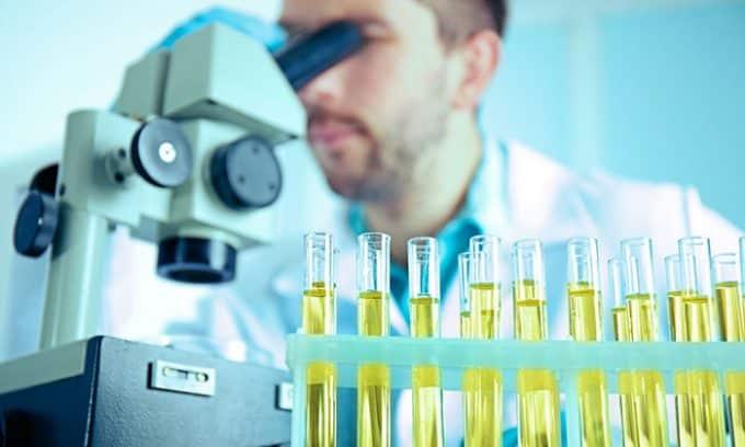 Анализ мочи позволяет определить наличие кристаллов камней, присутствие белка, бактерий и крови