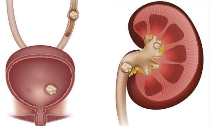 Учащенная уринация при мочекаменной болезни — следствие частичного перекрытия утерты камнями