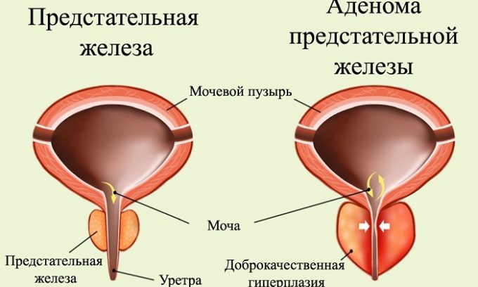 Частое мочеиспускание появляется при развитии аденомы простаты