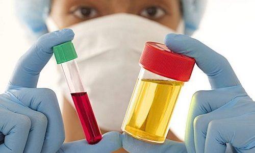 Для подтверждения диагноза специалист назначает несколько лабораторных исследований. Женщины сдают общие анализы крови и мочи (ОАК, ОАМ)