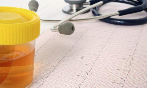 При воспалении мочеиспускательного канала у ребенка в моче появляется кровянистая примесь