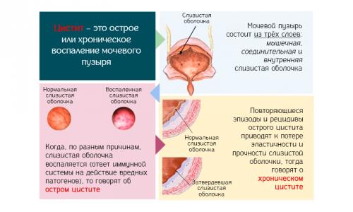 По характеру течения цистит бывает острым и хроническим, первичным (самостоятельное заболевание) и вторичным (проявившимся вследствие других урологических патологий)