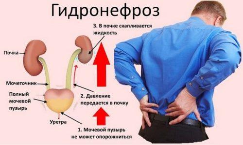 При длительном течении воспалительного процесса может произойти застой мочи в лоханках, что приведет к развитию гидронефроза