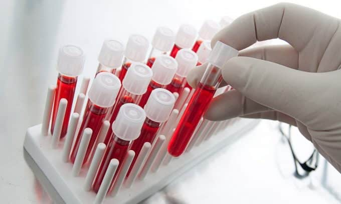 Анализ крови на вазопрессин. Для этого кровь берется из вены