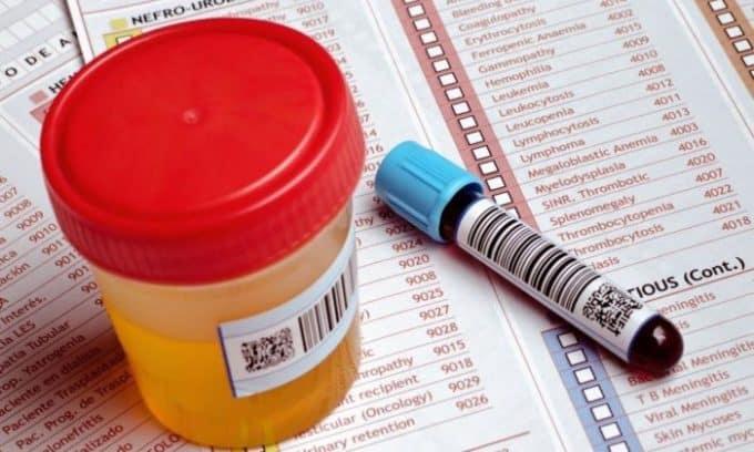 Цистит в психосоматике требует клинических подтверждений, поэтому необходимо сдать анализы на выявление возможных возбудителей инфекции