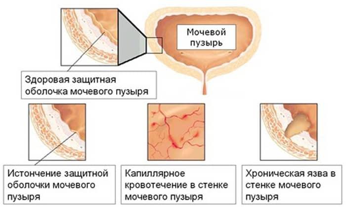 Цистит по мкб 10: хронический, острый, геморрагический, гнойный, лучевой, интерстициальный