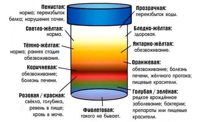 Психосоматический цистит в большинстве случаев не сопровождается выделением урины с кровью