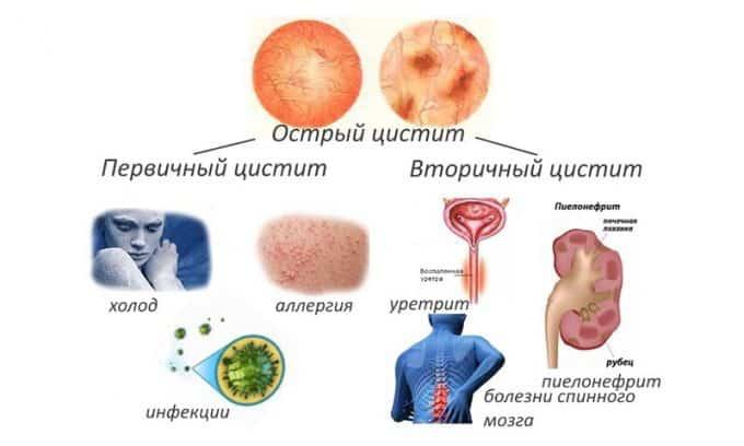 В зависимости от локализации воспаления цистит бывает шеечным и диффузным